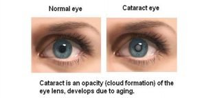 Cataracts are most commonly due to aging