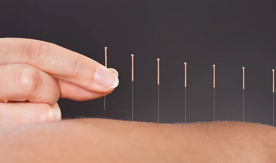 Acupuncture back pain success determined by psychological factors